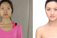 성형 전후 사진 모자이크 없이 공개한 여성들, 왜?