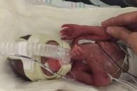 교통사고 사망 美여성 6개월 미숙아 기적 출산