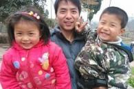 [월드피플+] 화상입은 父에 '두피 기증'한 8세·6세 남매