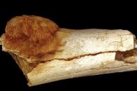 200만년 전 인류도 암에 걸려…뼈에서 악성종양 발견