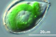 [와우! 과학] 광합성 하는 아메바가 있다?