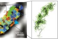 [고든 정의 TECH+] 세포 내부 1㎚까지 보는 초음파와 현미경