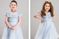 [월드피플+] 기부 가발로 자신감 되찾은 어린이 환자들