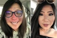 [월드피플+] '출생 반점' 당당히 공개…피부전문가 된 여성 사연