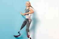 [월드피플+] 두 발 없는 7세 소녀, 英 패션계의 '돌풍' 되다