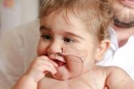 [월드피플+] 생존확률 1% 뚫고 첫 번째 생일 맞이한 아기의 기적