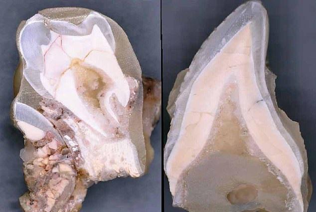 [와우! 과학] 200만년 전 인류도 아기에게 1년간 모유수유 (연구)