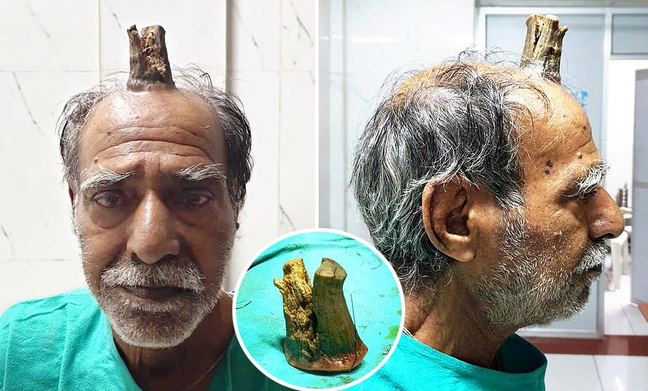 [여기는 인도] 머리 다친 뒤 '10㎝ 뿔' 생긴 할아버지, 수술로 새 삶